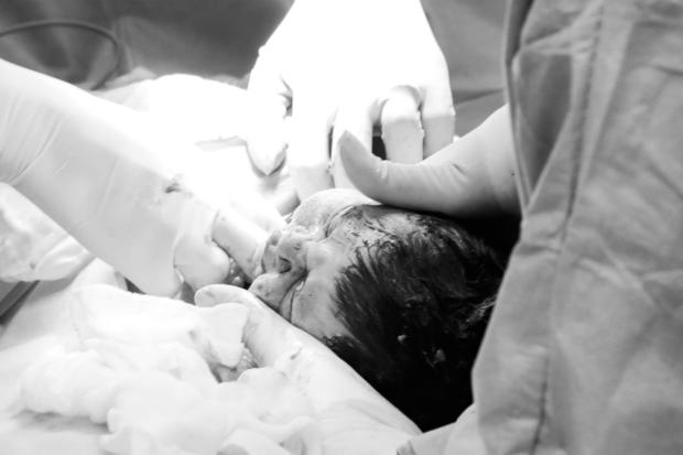 Fotografia de parto - o que é e por que você DEVE fazer esse registro